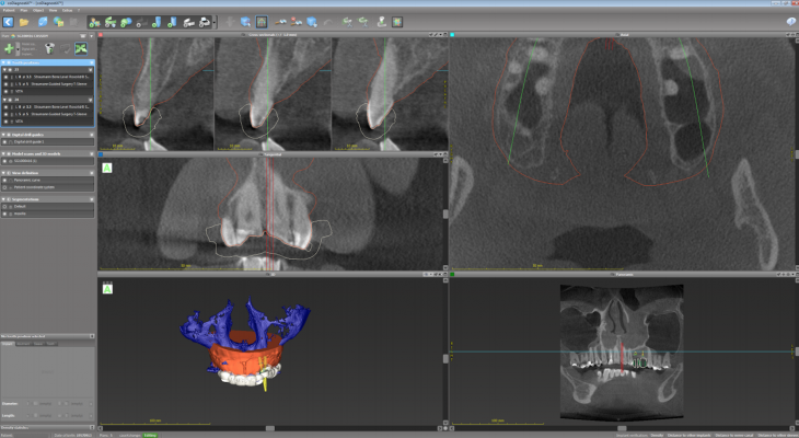 3D Surgical Guides